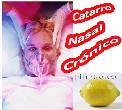 catarro nasal