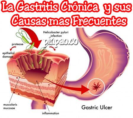 gastritis aguda sintomas