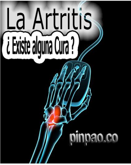 la-artritis
